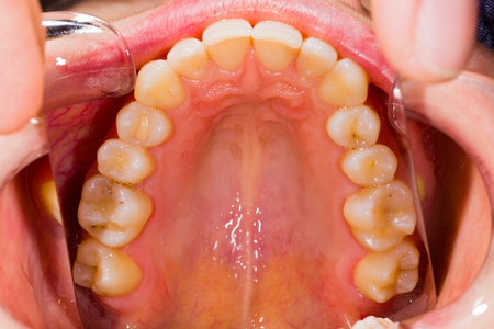 Healthy human denture with minor health issues made with special photography technique in dentist office.