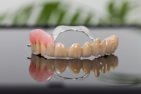 Reduced volume skeletal prosthesis made by dental technician and dentist - low cost but reliable rehabilitation technique. Stock Photo