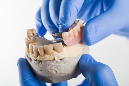 Dentist showing the anchoring mecnhanism of a dental skeletal prosthesis.