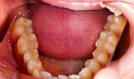 Healthy human denture made with special photography technique in dentist office.