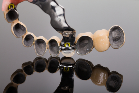 Skeletal prosthesis close-up made by dental technician and dentist. A low cost, but stable dental rehabilitation technique.