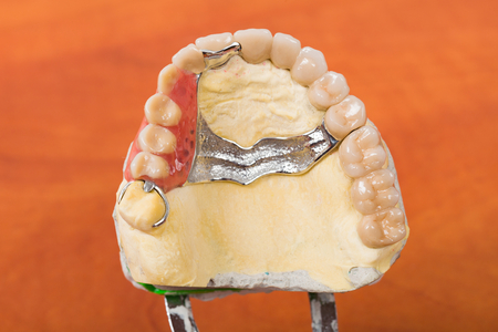 Dental skeletal prosthesis in gypsum casting.
