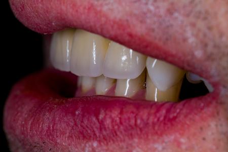Ceramic bridge replacing the missing natural teeth. Stock Photo