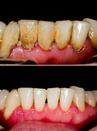 Before and after dental tartar removal - professional oral hygiene. Stock Photo