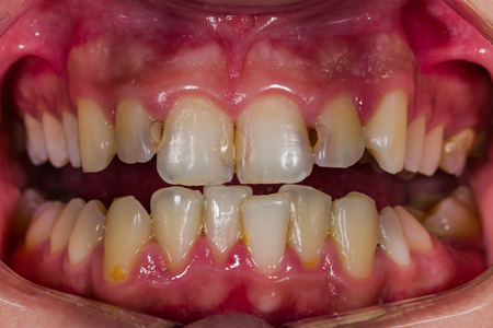 Front view of human decaying teeth. Bad condition. Archivio Fotografico