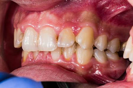 Dental problems closeup for patient education.