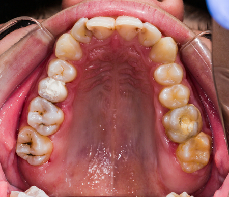 Occlusal view of human teeth - diagnostic of problematic teeth on the upper jaw. Archivio Fotografico