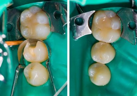 Zwei behandelte Zähne mit Komposit-Zahnfüllung, einer mit High-End-Technik, Nanohybrid und der andere mit Standardtechnik, Mikrohybrid.