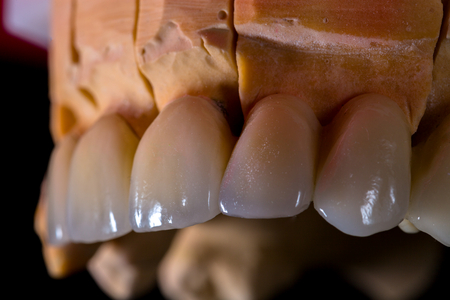 Natural looking ceramnic bridge on gypsum casting.