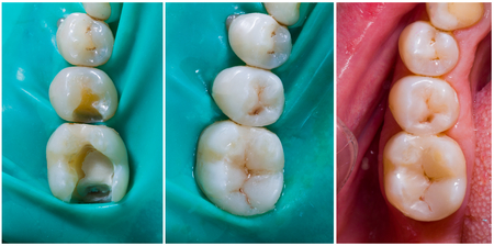 Natural looking dental filling before and after series - rebuilding function and aesthetics. Фото со стока