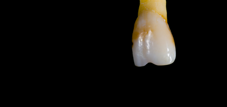 Removed and worn central incisor tooth isolated on black. Archivio Fotografico