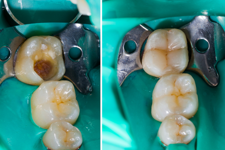 Natural looking dental filling before and after series. Stockfoto