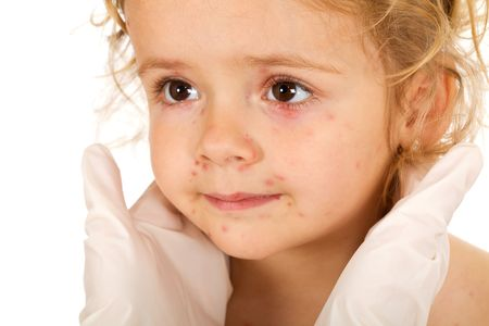 Little girl with small pox at the doctors examination - isolated, closeup Stock Photo - 5508352