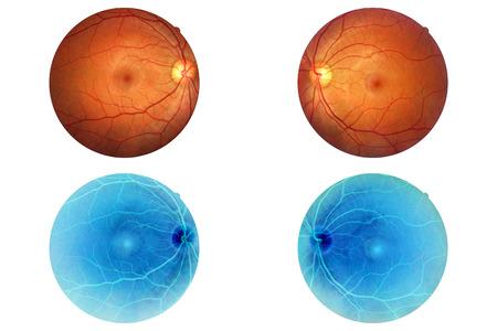 Human eye anatomy, retina, optic disc artery and vein etc. 版權商用圖片