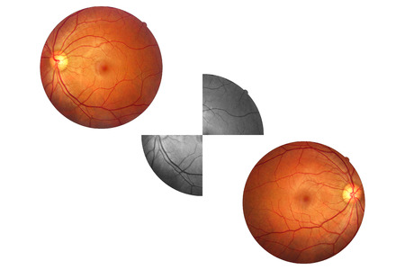 Human Eye Anatomy Retina Optic Disc Artery And Vein Etc Stock