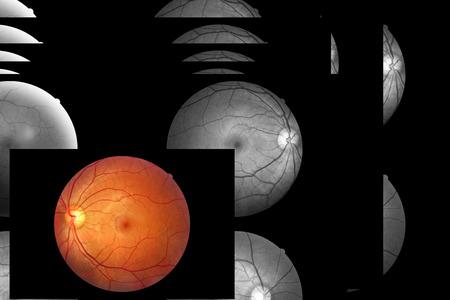 optic nerves: Human eye anatomy, retina, optic disc artery and vein etc.