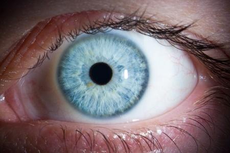 slit: Close-up of a beautiful female blue eye (shot through a slit lamp)