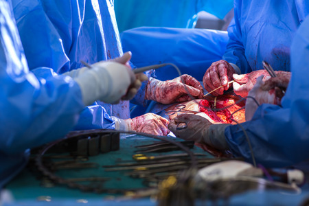 catling: Team of surgeons performing an operation on a patient in a hospital (shallow DOF; color toned image)