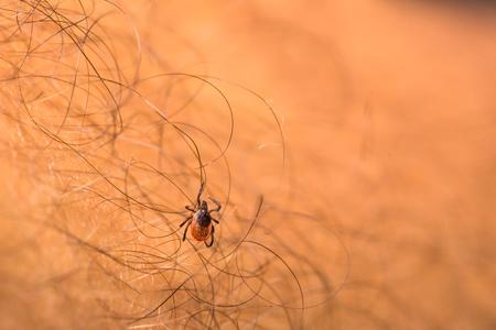 parasitic: Tick - parasitic arachnid blood-sucking carrier of various diseases