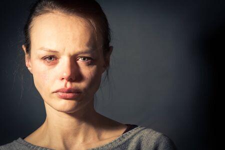 Jonge vrouw die lijdt aan ernstige depressie/angst/verdriet Stockfoto