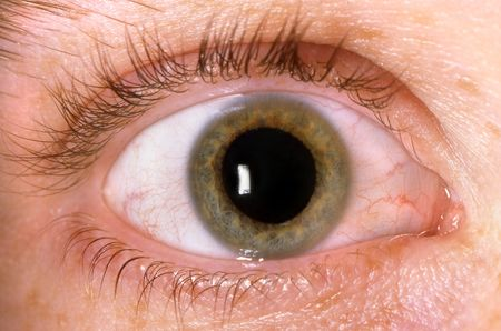 degeneration: Close-Up of Hazel Eye