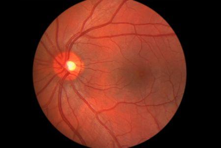 Retina - Human Eye - Showing optic nerve and macula photo