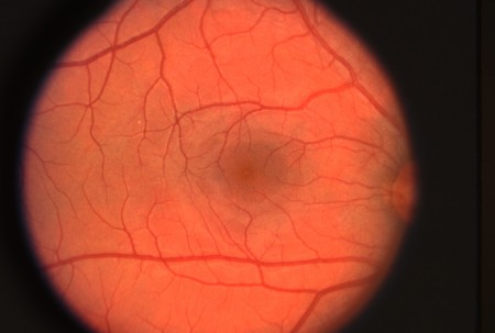 Ophthalmic image detailing the retina and optic nerve inside a healthy human eye. The dark area in the center of the image is the macula, the center of vision where most rods and cones are located