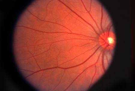 Ophthalmic image detailing the retina and optic nerve inside a human eye Stock Photo
