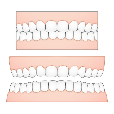 displacement: vector illustration of white teeth and gums from a frontal perspective for medical and dental depictions Illustration