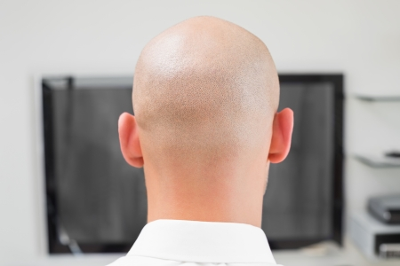 Extreme Close up rear view of a bald man using computer photo