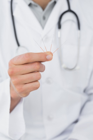 alternative medicine: Extreme close-up mid section of a male doctor holding acupuncture needles