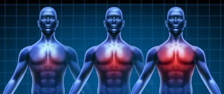 gradual: Coraz�n enfermedad cada vez peor gradualy representado por tres de los seres humanos con el aumento de enfermedades coronarias de la zona del pecho representada por creciente resaltado en rojo de la inflamaci�n card�aca m�dica.