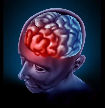 cognitive: Migrain headache pain represented by a human brain with a red highlight showing the cognitive neurological disease that inflicts many patients.