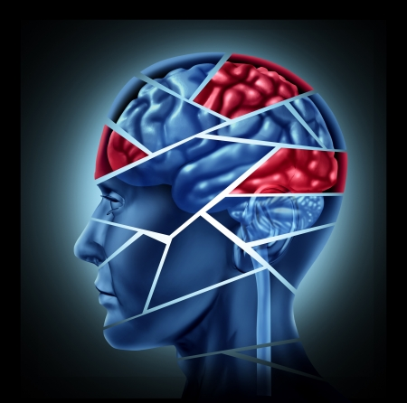 physical injury: Mental disability with brain injury and neurological disorder represented by a human head and mind broken in pieces to symbolize a severe medical mental trauma and cognitive illness on white background. Stock Photo