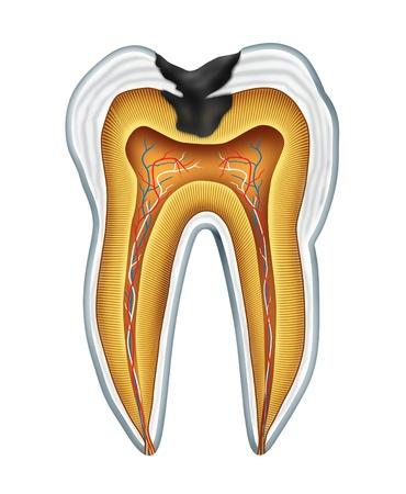 fluoride: Diente cavites s�mbolo que muestra la anatom�a de secci�n m�dica de los dientes con una cavidad en decadencia debido a las bacterias pobres y �cidos en el cuidado de la salud bucal y la falta de cepillado y flosing y visitar al dentista para la prevenci�n de enfermedades orales.
