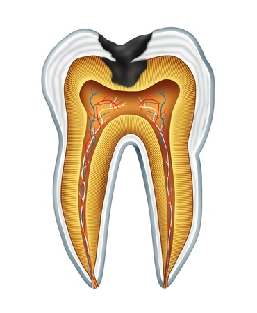 rotten teeth: Tooth cavites symbol showing the medical cross section anatomy of teeth with a cavity in decay due to poor bacteria and acids in oral health care and lack of brushing and flosing and visiting the dentist for oral disease prevention.