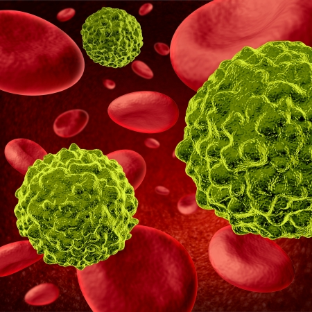 Cancer cells spreading and growing through the body via red blood cells as malignant cells in a human body caused by environmental carcinogens and genetic causes as tumors and cell damage are treated to cure the disease.