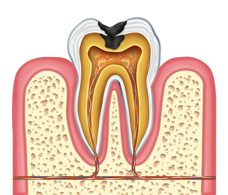 mouth cavity: Tooth inner anatomy diagram as a dentist surgeon teeth symbol for dental clinic and oral specialist representing dentistry medicine and mouth surgery for a cavity decay illness on a frontal view white single molar tooth. Stock Photo