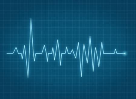battement du coeur: ECG battement de coeur d'impulsion de vie en ligne panneau bleu
