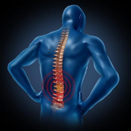espalda: dolor en la espalda del cuerpo humano esqueleto de la columna vertebral del cord�n