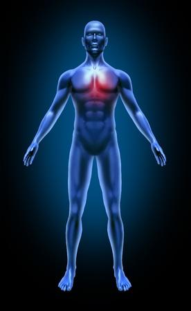 circolazione: Corpo umano cuore dolore ictus colesterolo circolazione attacco coronarico medici a raggi X rappresentano articolazioni blu muscoli