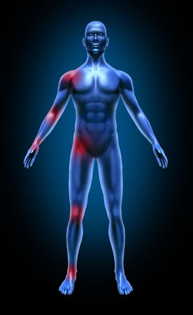inflamation: Human body joint pain inflamation medical x-ray pose joints muscles blue Stock Photo