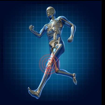 esqueleto humano: Dolor en la rodilla humana corriendo esqueleto del hombre de rayos X los huesos de la salud visual de fitness ejercicio s�mbolo de carta
