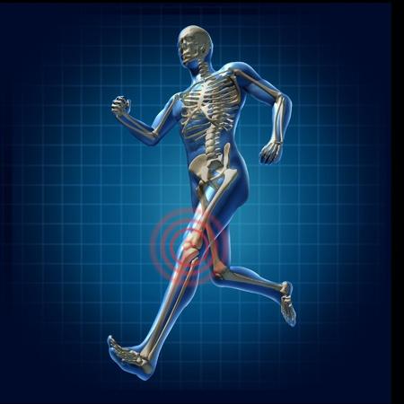anatomie mens: Human kniepijn running man skelet x-ray visuele gezondheid van de botten fitness oefening kaartsymbool