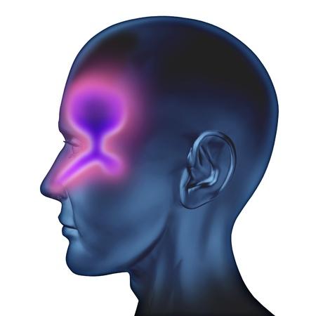 nariz: Humanos congesti�n nasal relacionado con la tos gripe y resfriado bronquial y influenze causada por el virus del resfr�o com�n que infecta y se basa mucosidad de color verde en la garganta nariz y o�do el sistema de drenaje del cuerpo m�dico sobre un fondo blanco. Foto de archivo