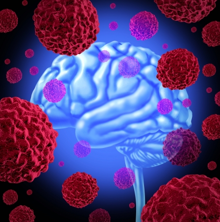Human brain cancer with cells spreading and growing as malignant cells in a human caused by environmental carcinogens and genetic causes as terminal tumors and cell damage are treated to cure the disease.