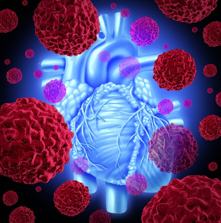 cancer spread: Human heart cancer health care medicine concept with the inner human organ and red cancer cells forming tumors spreading in the body as a malignant disease that needs chemotherapy or heart surgery.