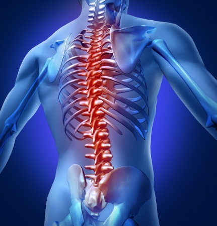 chronic back pain: Human backache and back pain with an upper torso body skeleton showing the spine and vertebral column in red highlight as a medical health care concept for spinal surgery and therapy. Stock Photo