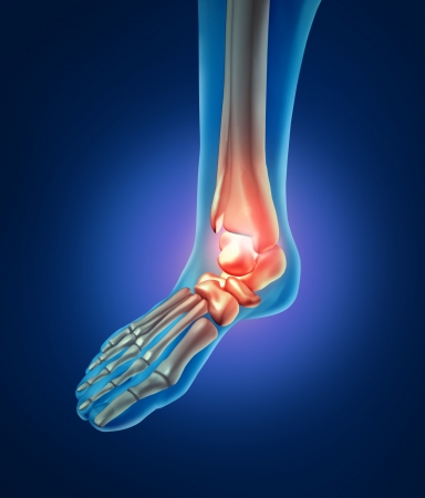 foot pain: Foot pain with a skeleton of the walking body part with bones in red where trhere is inflamation of the ankle  that has an orthoedic joint injury caused y bad shoes or running accident.