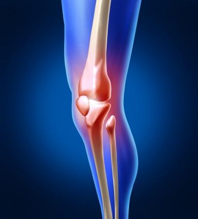 osteoarthritis: Dolor en la rodilla humana con la anatom�a del esqueleto de una pierna y que muestra la inflamaci�n en el interior de la articulaci�n dolorosa que necesita cirug�a ortop�dica y la terapia f�sica como la salud y la medicina o m�dicos concepto de lesiones deportivas. Foto de archivo